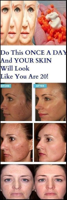 Beautiful and young skin without wrinkles is something that…