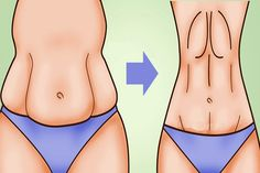 A major issue for most women is saggy stomach skin. Whether it's caused by drastic weight loss or by pregnancy, saggy skin on your stomach 7 Workout, Perder 10 Kg, Lose Weight, Weight Loss, Lose Fat, Unwanted Hair, Unwanted Facial, Healthy Beauty, Healthy Food