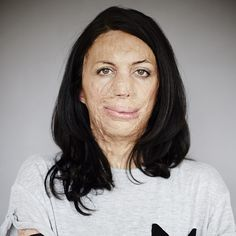 Meet Turia Pitt. Pitt is magnificent. Her courage, fortitude and choice to share her heroic journey with the world on Instagram is truly one of the most beautiful things Ive ever seen.