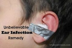An Unbelievable Natural Ear Infection Remedy
