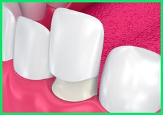Cosmetic Dentistry, Dental Crowns, Bridges, Invisalign, Veneers, Teeth Whitening, Root Canals, Wisdom Teeth extraction and more - 2 location in Sydney. Root canals Lane Cove West and cosmetic dentist north Chatswood. Impacted Wisdom Teeth, Affordable Dental Implants, Veneers Teeth, Smile Dental, Teeth Implants, Dental Center, Dental Bridge, Dental Crowns, Best Dentist