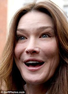 CARLA BRUNI (right). According to surgeon Alex Karidis, she's overused Botox and fillers, hence the hamster cheeks and odd eyes Under Eye Fillers, Cheek Fillers, Dermal Fillers, Face Plastic Surgery, Plastic Surgery Gone Wrong, Carla Bruni Young, Malar Bags, Eye Dermal, Allergan Botox