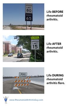 To learn more about what it's like to live with rheumatoid arthritis, please visit www.rheumatoidarthritisguy.com.
