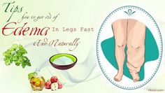 19 Tips How To Get Rid Of Edema In Legs Fast And Naturally