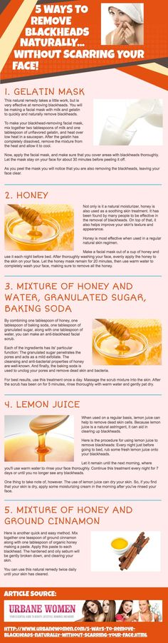 5 Ways To Remove Blackheads Naturally… Without Scarring Your Face #remedies #beauty #Infographic