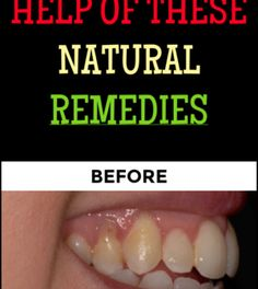 Grow Back Your Receding Gums in No Time With The Help of These Natural Remedies – Page 4 – Airplus