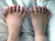 On 22nd March, 2010, A chinese boy From Shenyang, capital of northeast China's Liaoning province, showed his weird fingers and toes. He has a total of 31 fingers and toes, 7 fingers in left hand, 8 in right hand and 8 toes in each foot. He has broken the earlier record of 25 fingers and toes. He is currently in Shenjing hospital and ready for an operation.: