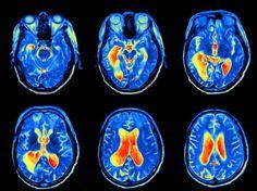 fMRI hjerneskanning neurovidenskab algoritme metodefejl
