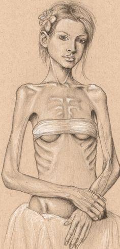 anorexia by alexsaurus.deviantart.com on @deviantART