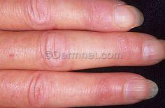 1000+ images about Dermatomyositis on Pinterest | Light ...