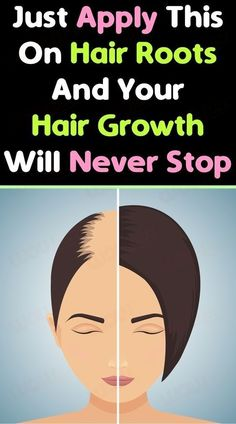 Extreme Hair Growth, Hair Growth Tips, Fast Hair Growth, Fast Hairstyles, Hair Remedies, Natural Remedies, Hair Regrowth, Hair Follicles, Belleza Natural