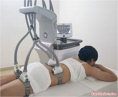 Hủy mỡ không phẫu thuật với laser Sculpsure - https://chongnangiz.com/huy-mo-khong-phau-thuat-voi-laser-sculpsure/