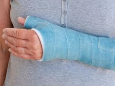 12 Ways To Break-Proof Your Bones: 6. Don't break a leg (or an arm!) http://www.prevention.com/health/health-concerns/12-ways-prevent-osteoporosis-and-broken-bones?s=7