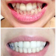 #TransformationTuesday: Congratulate @sophieding_ on her beautiful Invisalign smile! There is no denying the difference in this before and after. #BeforeandAfter