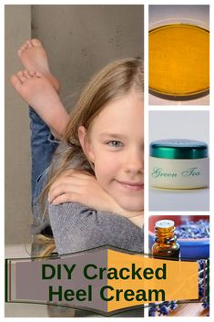 10 Cracked Heels Home Remedies to Get Back Those Baby Feet - NatuRelieved Home Remedies, Natural Remedies, Cracked Heel Remedies, Dry Cracked Feet, Soft Heels, Natural Beauty Recipes, Baby Feet, Diy Skin Care, Natural Cosmetics