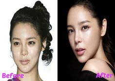 plastic surgery rumor Park Shi Yeon