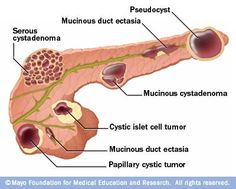 Cyst fluid: pseudocyst = high amylase, high CA19-9, low CEA. serous cystadenoma = all low. Mucinous cystadenoma/MCN = HIGH CEA. IPMN = all high. solid pseudopap = all low.