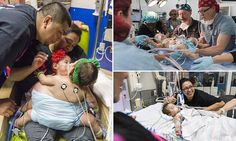 Conjoined twin girls survive 26-hour operation to separate them