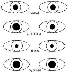 Hola, buenos días! Valoración de las pupilas El tamaño pupilar normal oscila entre 1 y 4 mm, dependiendo de la luz exterior. En condiciones ...