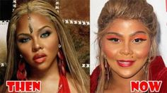 Chatter Busy: Lil Kim Plastic Surgery