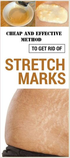 Cheap and effective method to get rid of stretch marks in a week Health Remedies, Home Remedies, Natural Remedies, Arthritis Remedies, Natural Treatments, Reduce Stretch Marks, Everything Is Connected, Tips Belleza, Healthy Tips