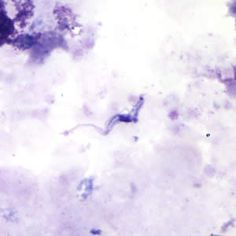 Trypansoma brucei ssp. in a thick blood smear stained with Giemsa.