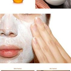 Eliminate acne scars forget expensive cosmetic
