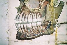 Max Brödel - Medical Illustration