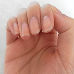 Top Home Remedies For Peeling Fingernails
