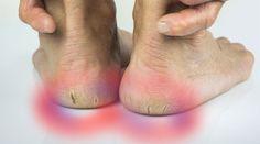 Seus pés nunca ficarão macios se você comete esse erro comum - Bolsa de Mulher