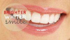 Remedies For Whiter Teeth According to oil swishing enthusiasts, the practice can: Improve oral hygiene signifcantly by removing bacteria, plaque and gingivit. Teeth Whitening Remedies, Natural Teeth Whitening, Coconut Oil For Teeth, Beauty Tips For Teens, Oil Pulling, Healthy Oils, Cosmetic Dentistry, Oral Hygiene, Teeth Cleaning