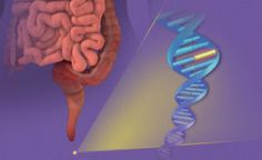 Noninvasive colorectal cancer screening tool shows unprecedented detection rates