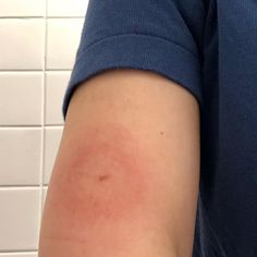 fter two weeks in Central America, back to my country and saw this on my right arm. I was reported to CDC as a case of imported Lyme Central America, Health Fitness, Insect Bites, Important, Country, Tips, Instagram, Insects, Pura Vida