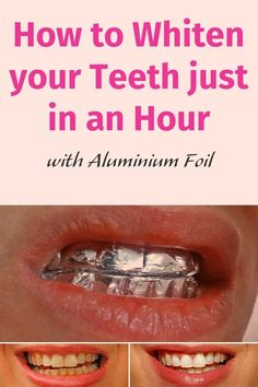 How to Whiten your Teeth just  in an Hour with Aluminium Foil. Does this work? This just screams ow to me!
