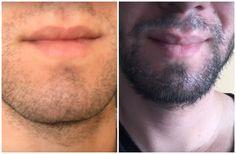 Best Beard Growth, Bald With Beard, Hipster, Health, Grow A Beard, Short Hairstyles, Haircuts, Hair And Beard Styles, Thick Beard