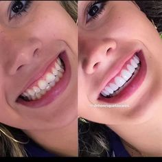 WhatsApp Professional in charge Dr Henrique Ferreira Tavares CRO-Go First initial diagnostic picture. Veneers Teeth, Dental Veneers, Dental Braces, Teeth Braces, Perfect Teeth, Perfect Smile, Composite Veneers, Braces Tips, Beautiful Teeth