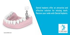 Dental implants offer an attractive and effective solution for missing teeth.Restore your smile with Dental Implants. For More : http://drnilesh.com/