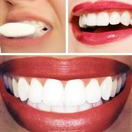 Dr. Oz Teeth Whitening Home Remedy:  1/4 cup of baking soda + lemon juice from half of a lemon. Apply with cotton ball or q-tip. Leave on for no longer than 1 minute, then brush teeth to remove.  http://www.finditforweddings.com