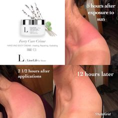 Save yourselves! Save your families! The sun is out and he doesn't care about your skin.☀️🔥 Forty Cure Creme has got your back! Lime Light By Alcone, Skin Rash, Summer Skin, Beauty Guide, Cruelty Free Makeup, Rosacea, Body Treatments, New Skin