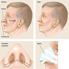 Rinoplasti (Estetik Burun) Ameliyatı Samsun