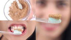Dişçiye gitmeden tartar temizlemede ve dişleri beyazlatmada en etkili formüller