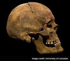 Richard III - The skull seen from the side