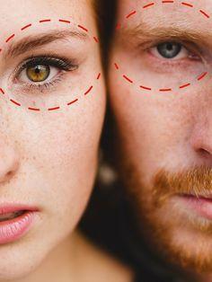 Crf known facial as procedure rejuvenation