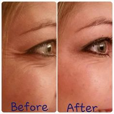 acute care before and after www.llanoix.myrandf.com Happy Skin, Skin Firming, Skin Tightening, Cellulite Treatment, Scalp Psoriasis Treatment, Rosacea, Acute Care, My Rodan And Fields, Crows Feet