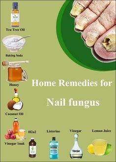 7 Ways to Get Rid of Toenail Fungus Fast and Naturally | Good 2 ...