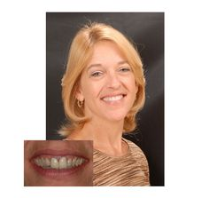 Smile Makeover Dentist El Cajon CA 92020, Cosmetic Dentistry, Dental Crowns Bonding, Teeth Whitening Porcelain Veneers, White Dental Fillings