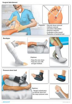 Treatment for diabetic foot ulcers Foot Care Type 2 Diabetes Recipe, Diabetes Recipes, Diet Recipes, Herbalife, Home Remedies For Diabetes, Medical Anatomy, Home Treatment, Medical Illustration, The Marketing
