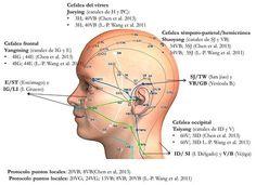 En casos de cefaleas y migrañas, la MTC considera la importancia de la localización de los síntomas y, de acuerdo a ello, la selección de los meridianos con desequilibrio energético.La imagen muestra el tratamiento realizado en dos investigaciones (estudio controlado randomizado y protocolo de estudio - ver al pie) en caso de migrañas. En ambas…