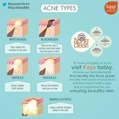 There are types of mild acne like whiteheads, blackhead & papules and severe acne types like pustules, nodules or cysts.