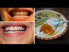 This Turmeric Anti-Inflammatory Paste Will Reverse Gum Disease, Swelling, And Kill Bacteria (as well as whitening your teeth) Gum Health, Oral Health, Dental Health, Dental Hygiene, Health Care, Pasta Dental Casera, Turmeric Anti Inflammatory, Turmeric Paste, Homemade Toothpaste